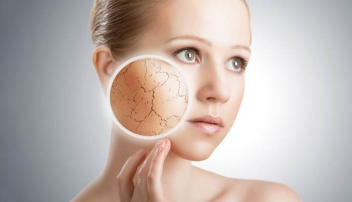 6 Tips to Help with Dry Skin